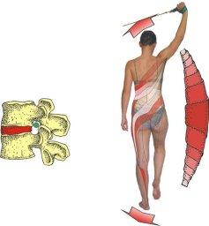 Jak cvičení SM Systém léčí bolesti zad